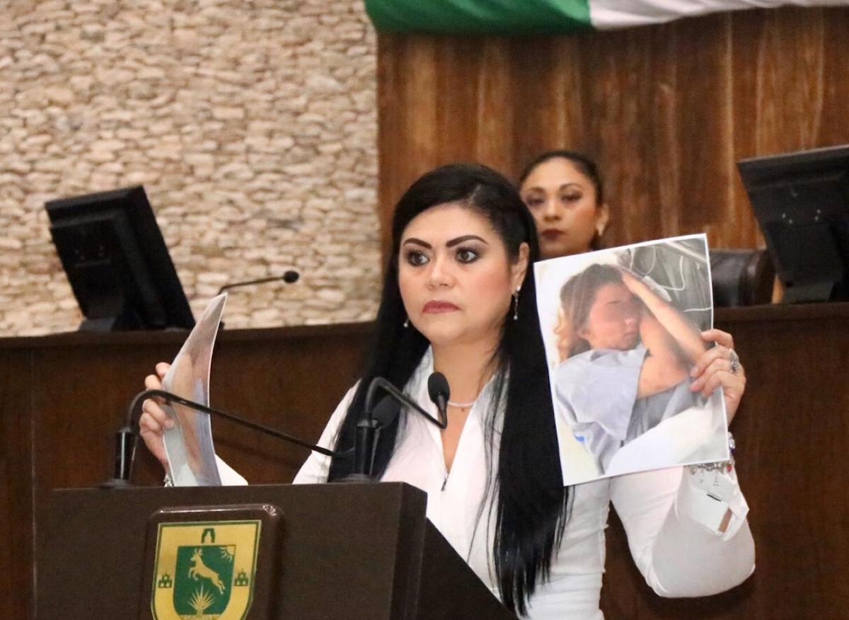 BOLIO CASO ANDREA